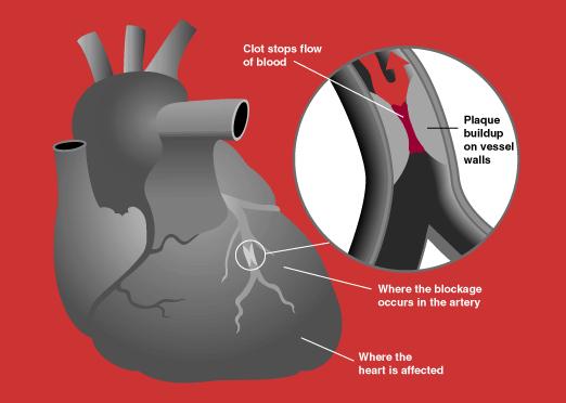 BSL Glossary heart attack