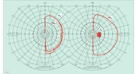 understanding visual field